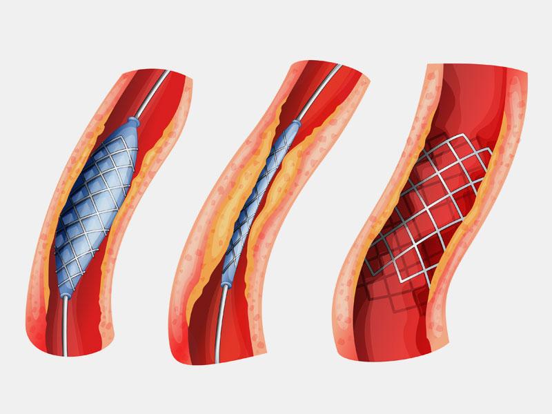Ενδαγγειακή Χειρουργική Περιφερικών Αγγείων