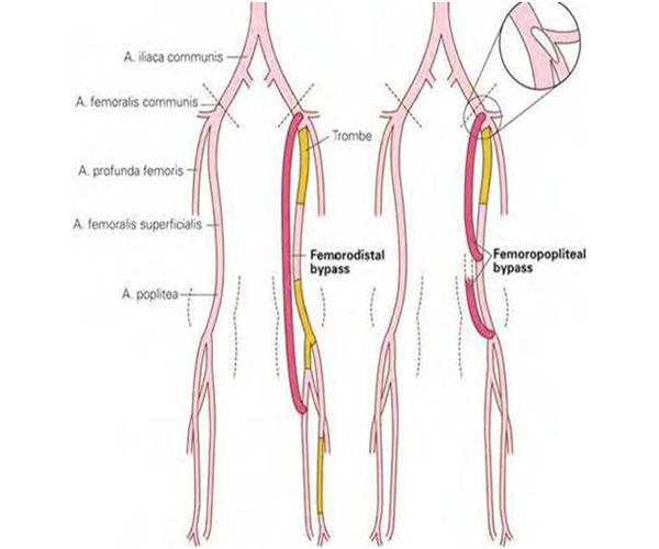Επεμβάσεις για Περιφερική Αγγειοπάθεια - Ανοικτή χειρουργική