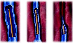 Laser/RF Θεραπεία για Κιρσούς